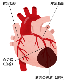冠動脈と血栓、壊死