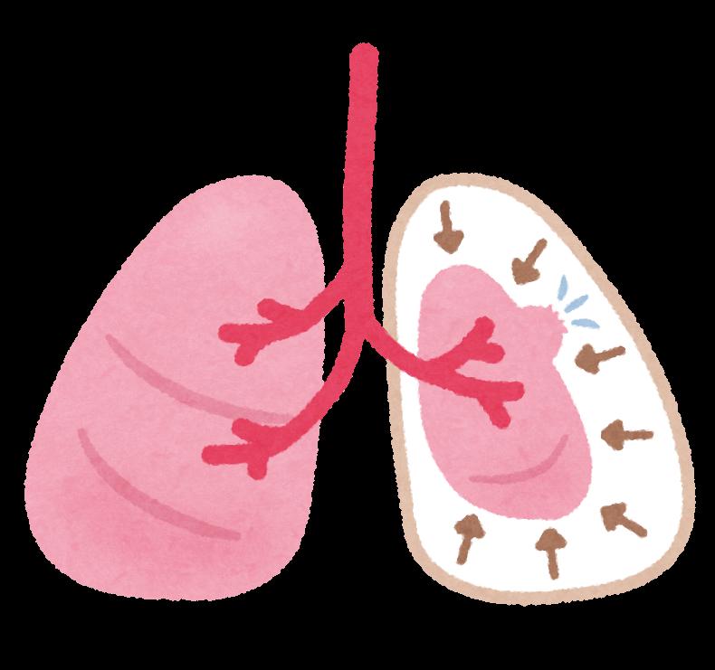 自然気胸の症状・予防について